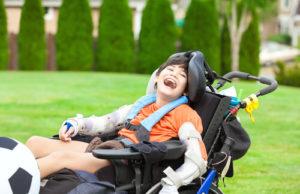 erbs palsy