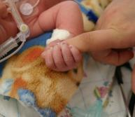 Birth Complications and Cerebral Palsy